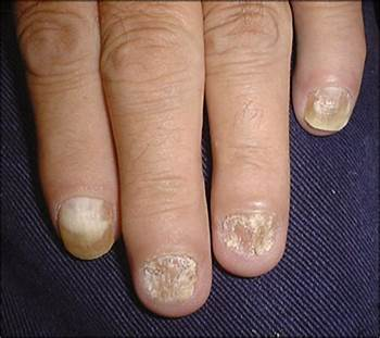 nail infection fungal infection